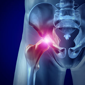Hip & Knee Arthritis