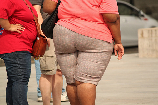 obesity and hip replacements